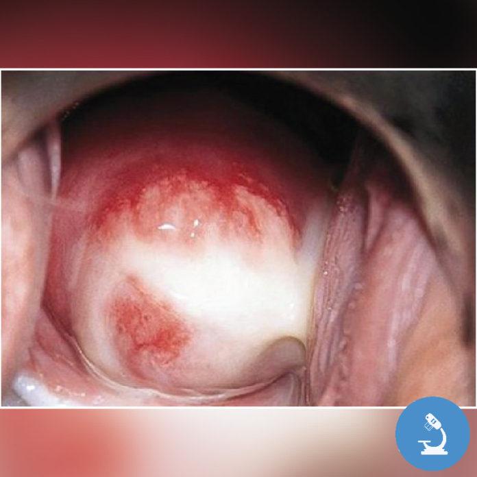 фото спермы во влагалище № 445192 бесплатно