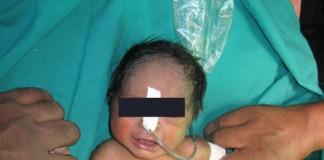 Sirenomielia, bambino affetto da Marmaid Syndrome