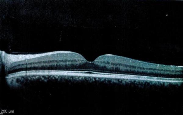 #3 Esempio: Tomografia a coerenza ottica