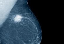 carcinoma mammario, x-ray