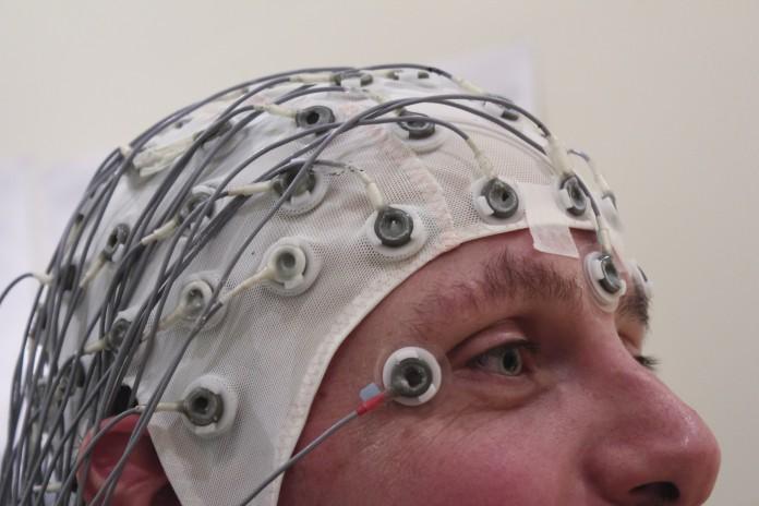 L'EEG per la diagnosi di epilessia