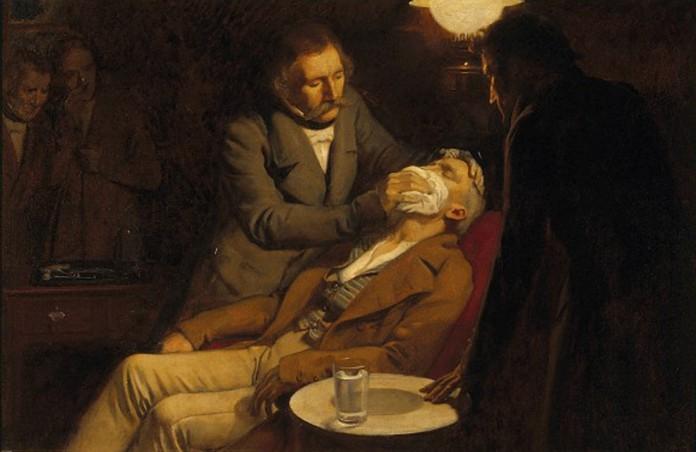 I primi esempi di anestesia