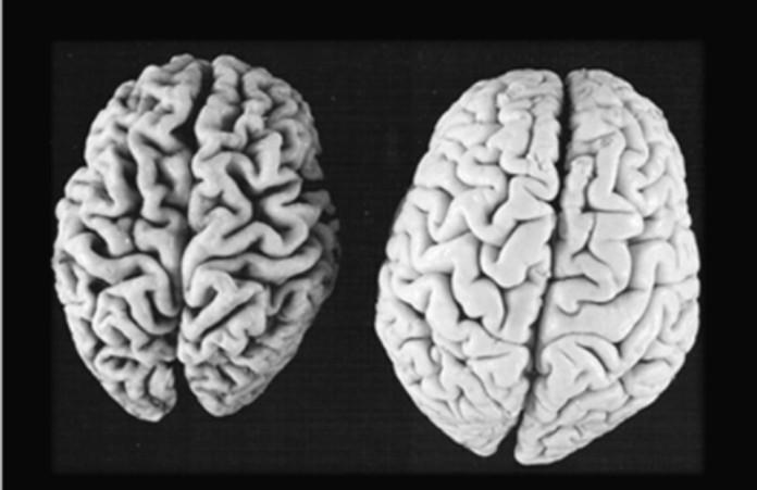 alzheimer morbo sindrome patologia neurodegenerativa demenza