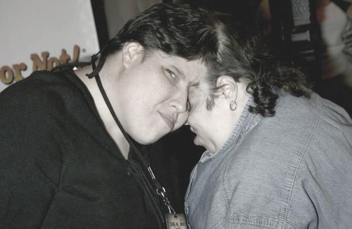 gemelle craniopaghe Lori e Dori Schappell deformazione congenita