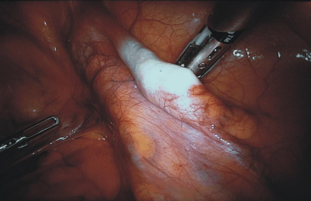 Abbozzo testicolare intra-addominale. (Fonte: PMID: 24715185)
