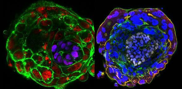 A destra un embrione al decimo giorno, a sinistra all'undicesimo. In questo stadio l'embrione, un agglomerato di cellule staminali pluripotenti, si auto organizza per formare una cavità. Questa nuova configurazione delle cellule getta le basi per la formazione del piano corporeo. In viola nell'immagine a sinistra possiamo osservare le cellule dell'epiblasto.
