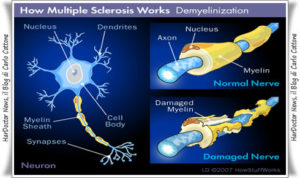 Meccanismo di patogenesi della Sclerosi Multipla