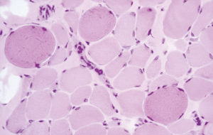 Reperto istopatologico che evidenzia le alterazioni tissutali in corso di DM