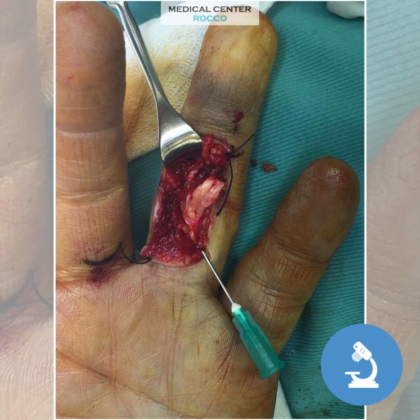 Chirurgia della mano e anatomia della dita