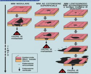 Evoluzione naturale di un melanoma