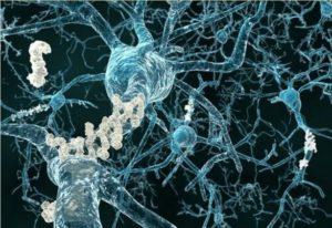 Placche amiloidi viste al microscopio