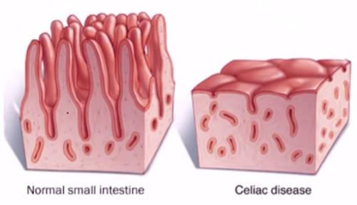 intestino-normal-celiaco