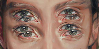 Diplopia art - Caso Clinico
