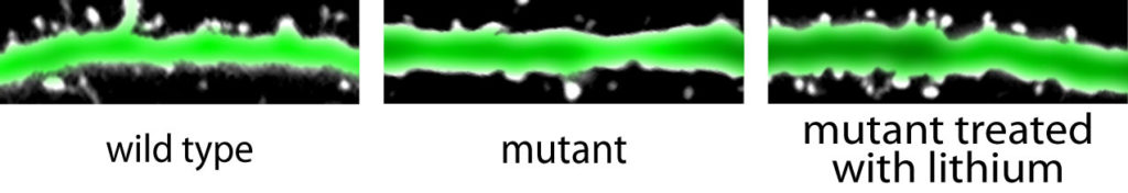 Neurons of mice with a mutation linked to psychiatric diseases (center) have fewer dendritic spines (white projections) than unaffected mice (left). Lithium treatment restored spines in the mutant mice (right). (Andiara Espíndola de Freitas/Robert Stanley, Cheyette lab, UCSF)