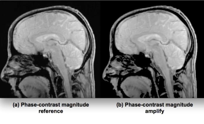 Cervello Danza Risonanza Magnetica MRI