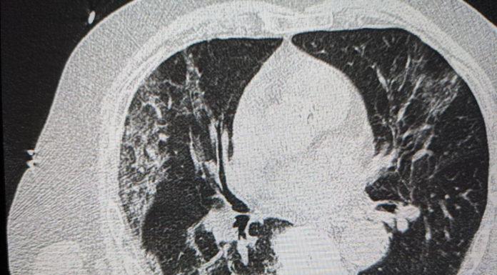 Quadro radiologico Polmonite da COVID-19